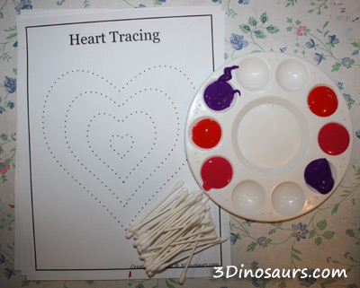 Q-tip Heart Tracing